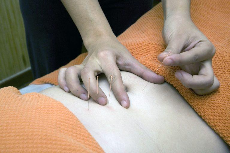 Acupuncture - France massage - article - découverte du massage